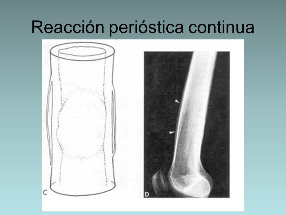 Reacción perióstica continua