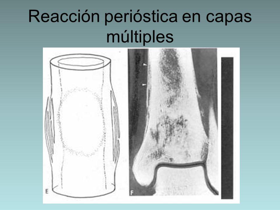 Reacción perióstica en capas múltiples