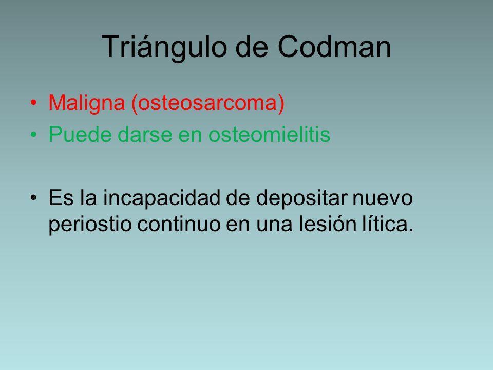Triángulo de Codman Maligna (osteosarcoma) Puede darse en osteomielitis Es la incapacidad de depositar nuevo periostio continuo en una lesión lítica.