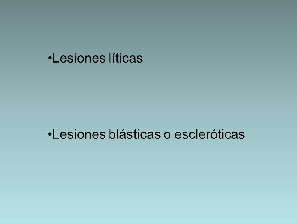 Lesiones líticas Lesiones blásticas o escleróticas