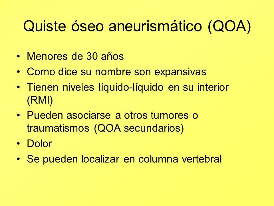 Quiste óseo aneurismático (QOA) Menores de 30 años Como dice su nombre son expansivas Tienen niveles líquido-líquido en su interior (RMI) Pueden asoci