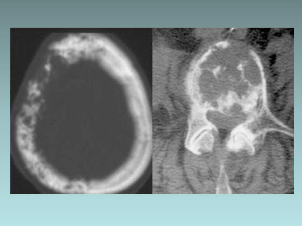 Lugares mas frecuentes –Columna lumbar: vértebras en marfil –Cráneo: copos de algodón –Pelvis: engrosamiento ileo-pectíneo –Femur y tibia: engrosamientos corticales 1 % presentan degeneración maligna: SARCOMATOSA