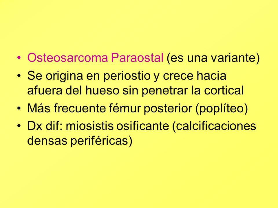 Osteosarcoma Paraostal (es una variante) Se origina en periostio y crece hacia afuera del hueso sin penetrar la cortical Más frecuente fémur posterior