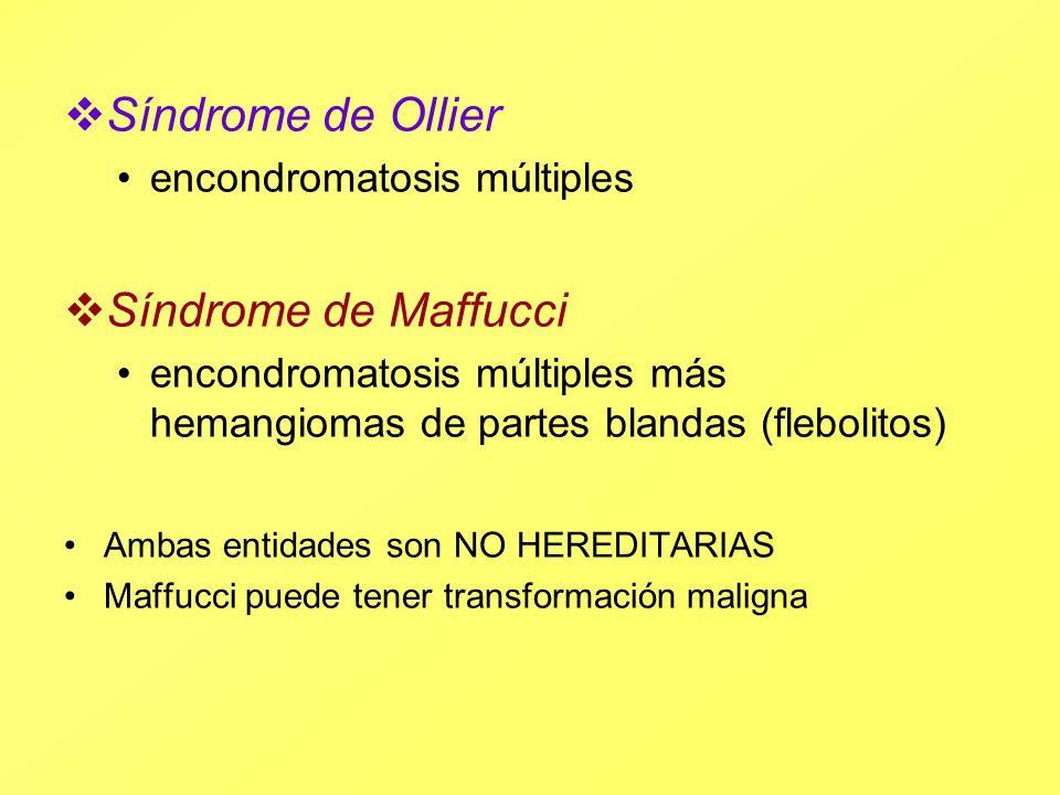 Síndrome de Ollier encondromatosis múltiples Síndrome de Maffucci encondromatosis múltiples más hemangiomas de partes blandas (flebolitos) Ambas entid