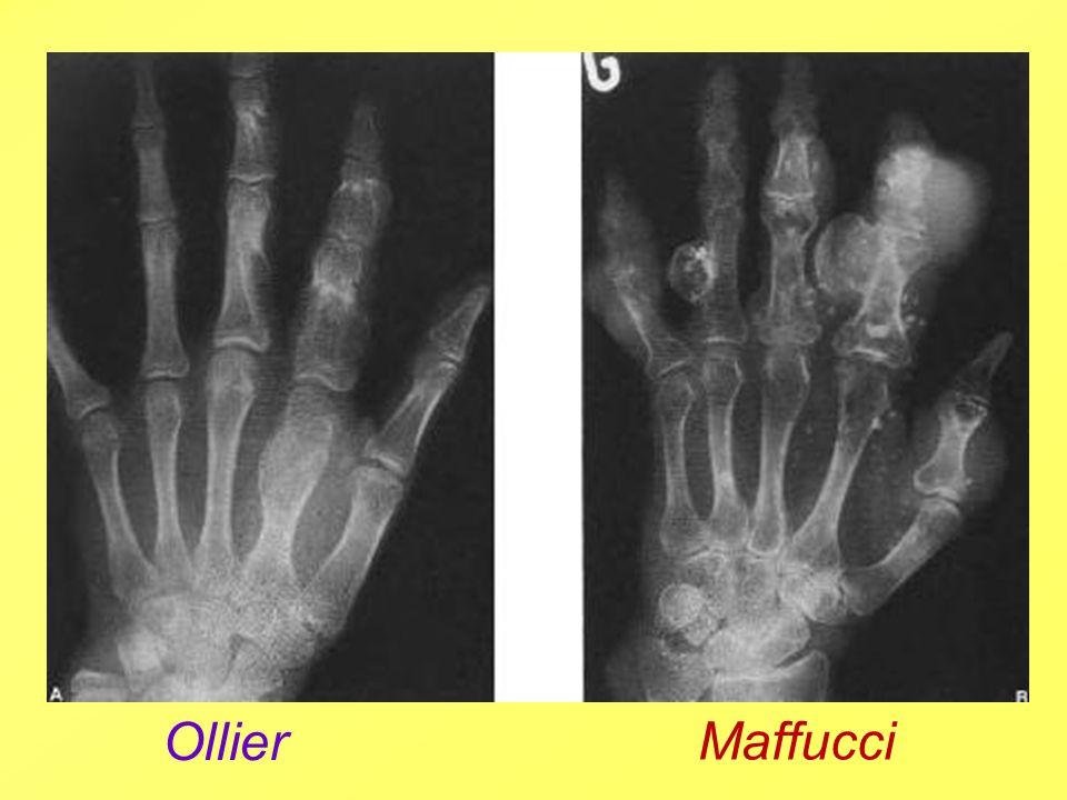 Ollier Maffucci