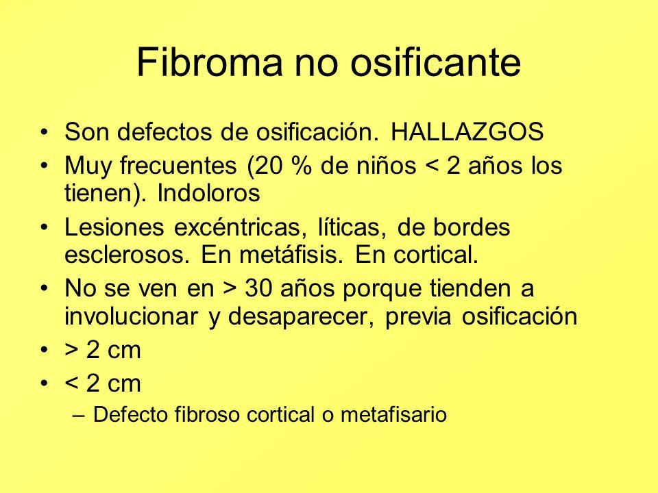 Fibroma no osificante Son defectos de osificación. HALLAZGOS Muy frecuentes (20 % de niños < 2 años los tienen). Indoloros Lesiones excéntricas, lític