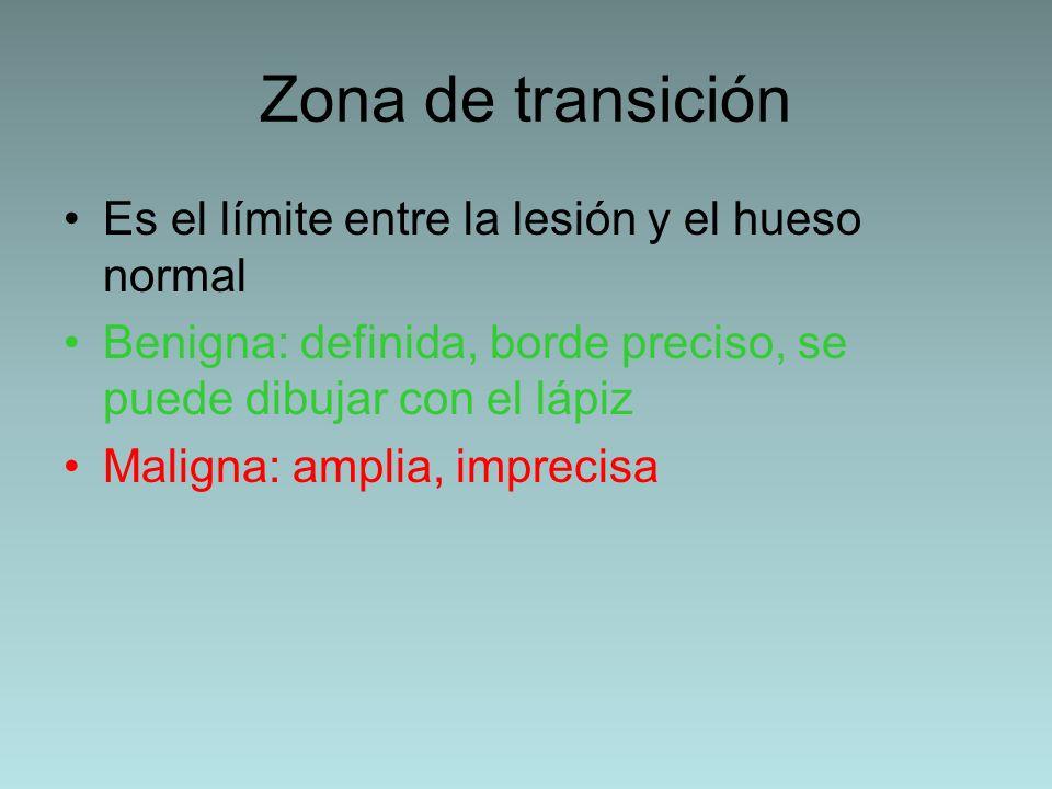 Zona de transición Es el límite entre la lesión y el hueso normal Benigna: definida, borde preciso, se puede dibujar con el lápiz Maligna: amplia, imp