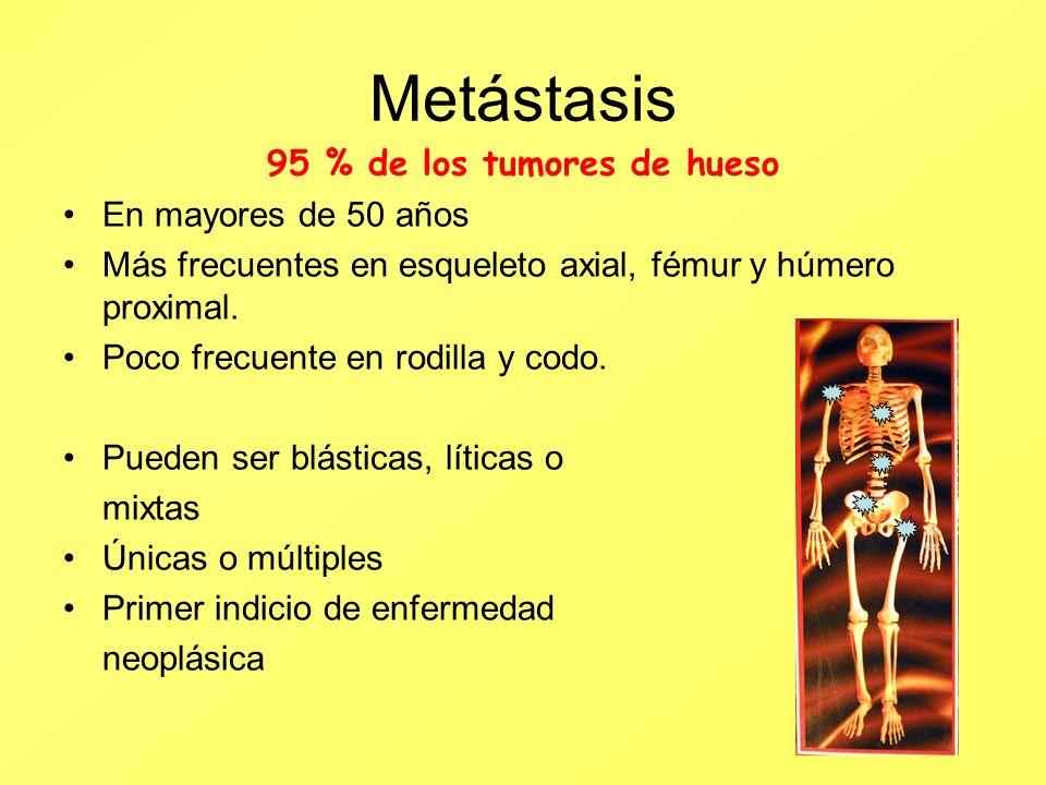 Metástasis 95 % de los tumores de hueso En mayores de 50 años Más frecuentes en esqueleto axial, fémur y húmero proximal. Poco frecuente en rodilla y