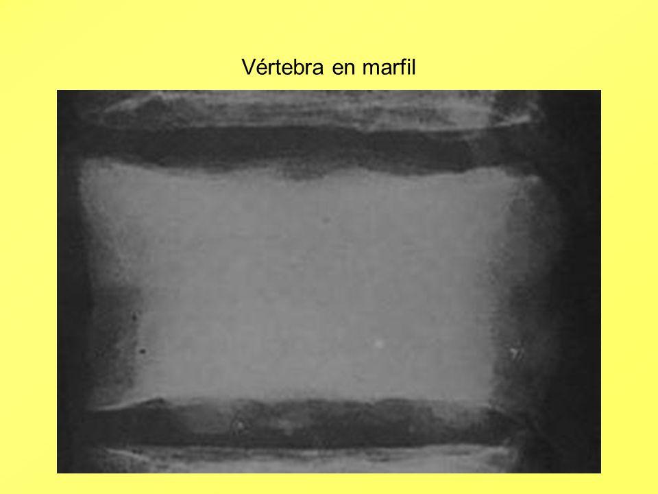 Vértebra en marfil