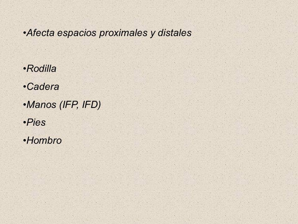 Afecta espacios proximales y distales Rodilla Cadera Manos (IFP, IFD) Pies Hombro
