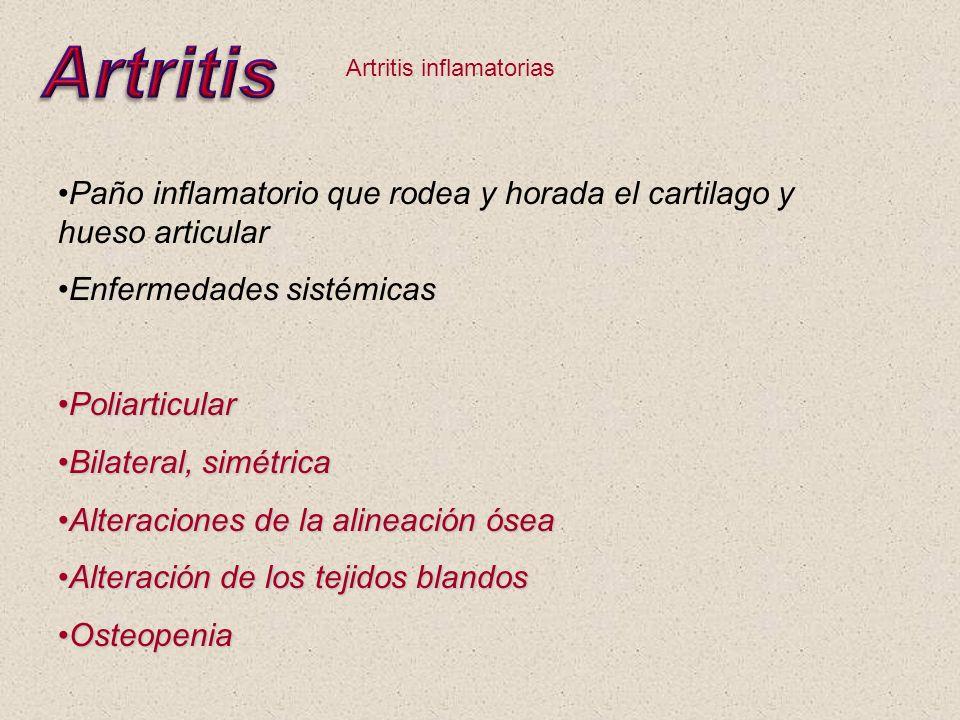 Artritis inflamatorias Paño inflamatorio que rodea y horada el cartilago y hueso articular Enfermedades sistémicas PoliarticularPoliarticular Bilatera