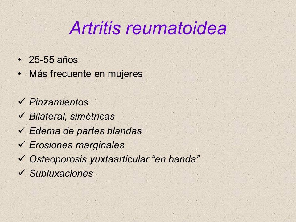 Artritis reumatoidea 25-55 años Más frecuente en mujeres Pinzamientos Bilateral, simétricas Edema de partes blandas Erosiones marginales Osteoporosis
