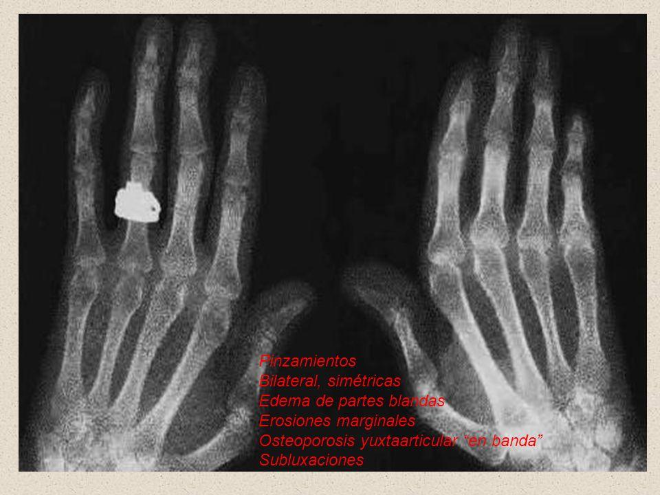 Pinzamientos Bilateral, simétricas Edema de partes blandas Erosiones marginales Osteoporosis yuxtaarticular en banda Subluxaciones