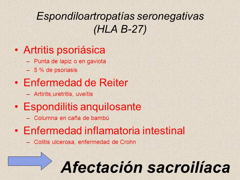 Espondiloartropatías seronegativas (HLA B-27) Artritis psoriásica –Punta de lapiz o en gaviota –5 % de psoriasis Enfermedad de Reiter –Artirits,uretri
