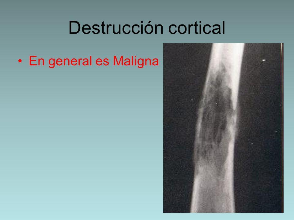 Sarcoma de Ewing Es un tumor de células pequeñas En la 1º y 2º década Tiene un patrón óseo permeativo o apolillado (puede simular una osteomielitis) Reacción perióstica en catáfila de cebolla o rayos de sol Diáfisis de huesos largos (fémur).