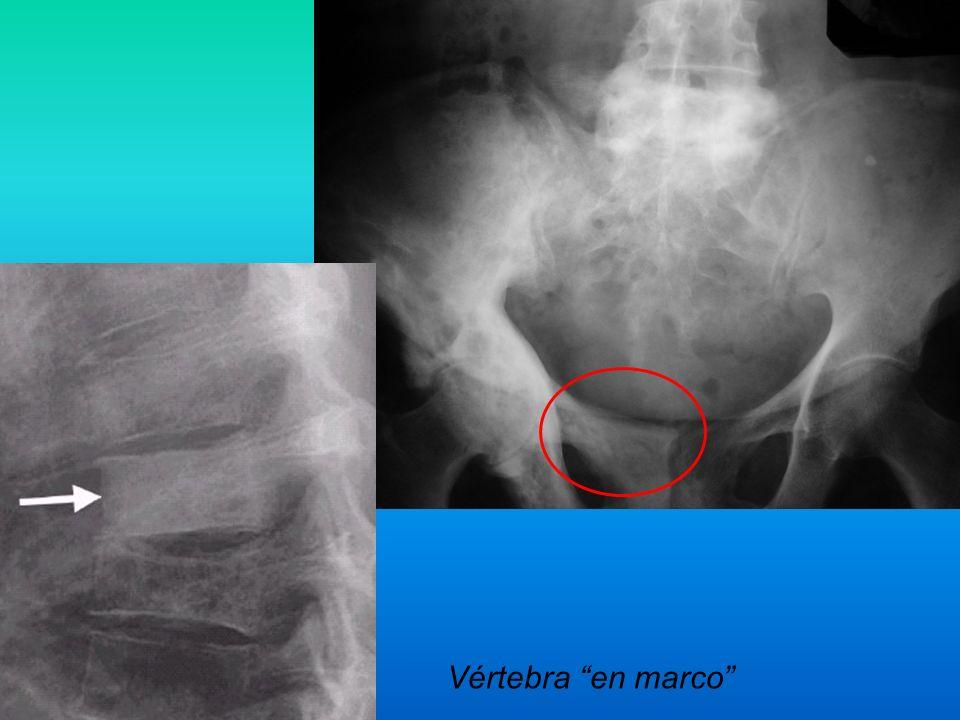 Vértebra en marco