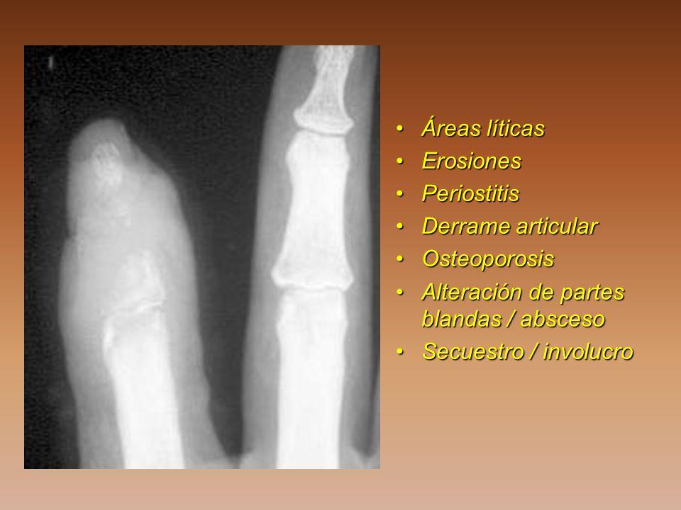 Áreas líticasÁreas líticas ErosionesErosiones PeriostitisPeriostitis Derrame articularDerrame articular OsteoporosisOsteoporosis Alteración de partes