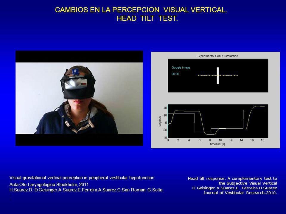 Head tilt response: A complementary test to the Subjective Visual Vertical D Geisinger.A.Suarez,E. Ferreira.H.Suarez Journal of Vestibular Research.20