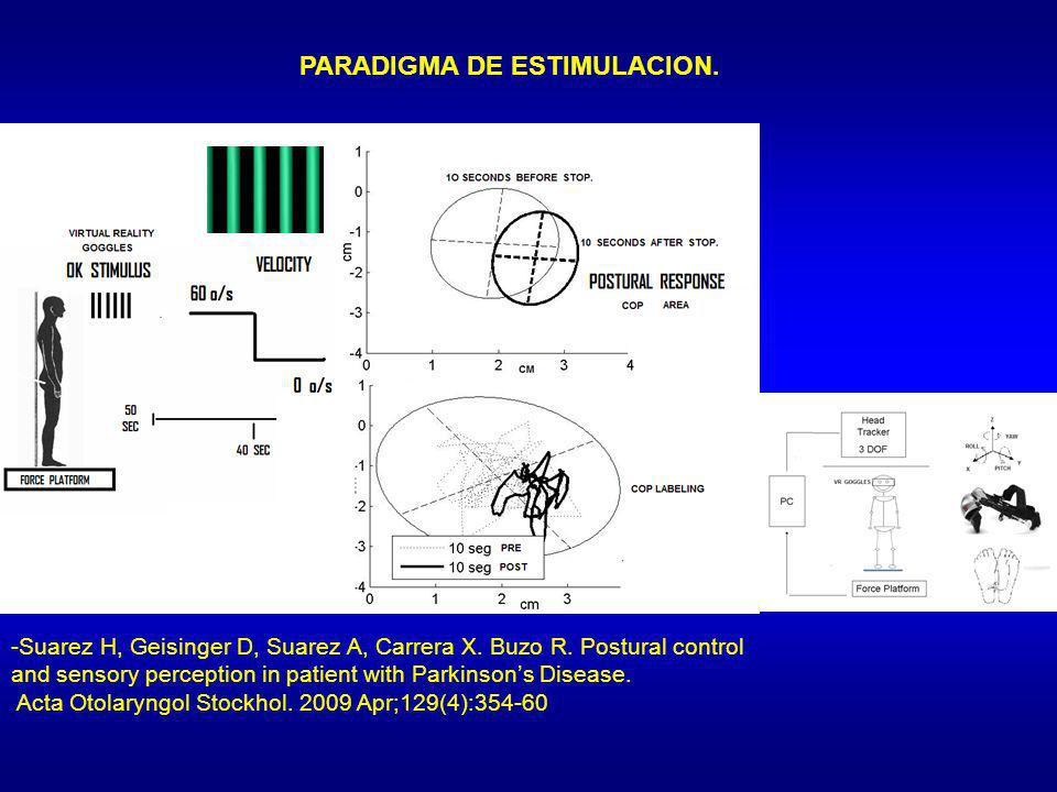 PARADIGMA DE ESTIMULACION. -Suarez H, Geisinger D, Suarez A, Carrera X. Buzo R. Postural control and sensory perception in patient with Parkinsons Dis