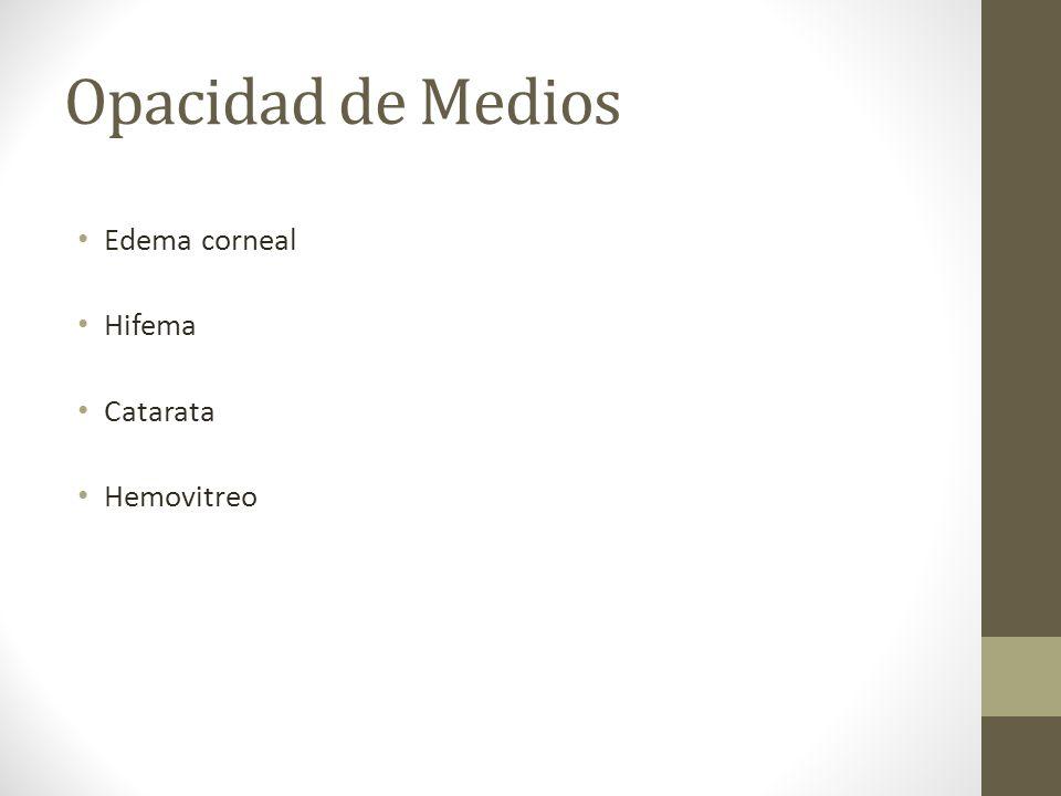 Opacidad de Medios Edema corneal Hifema Catarata Hemovitreo