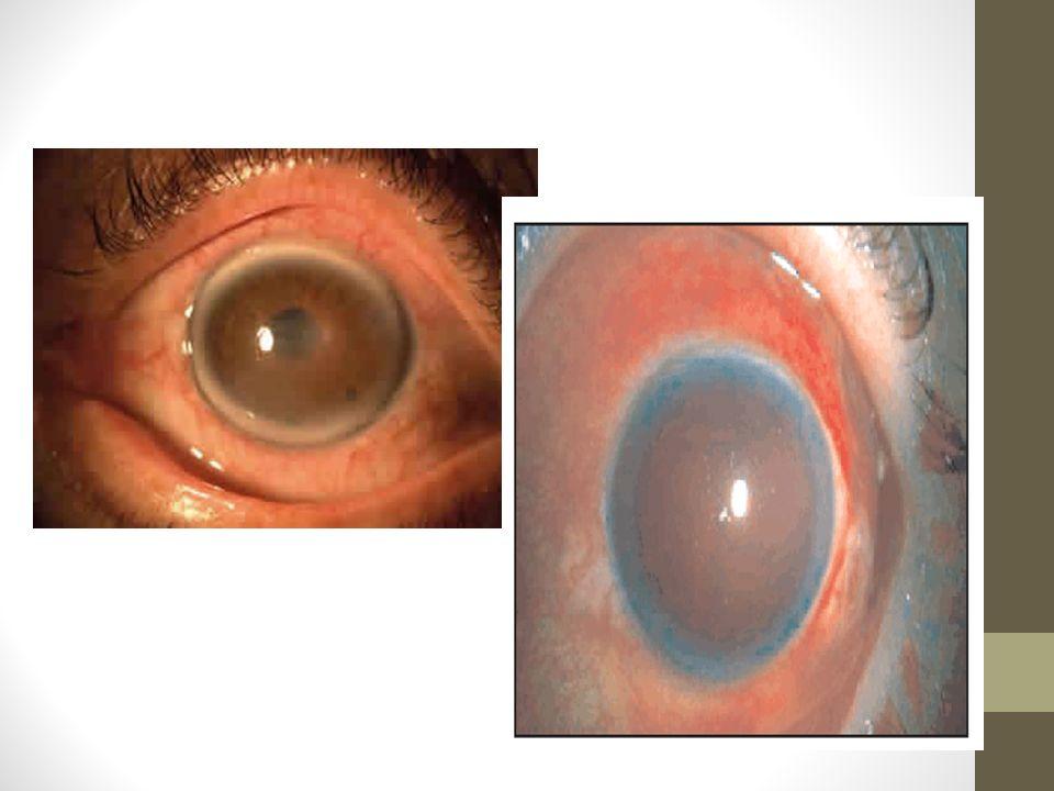 Patologías de la Retina Desprendimiento: fotopsias, miodesopsias, ¨mancha o tela¨ Enfermedad Macular: metamorfopsia Oclusión vascular