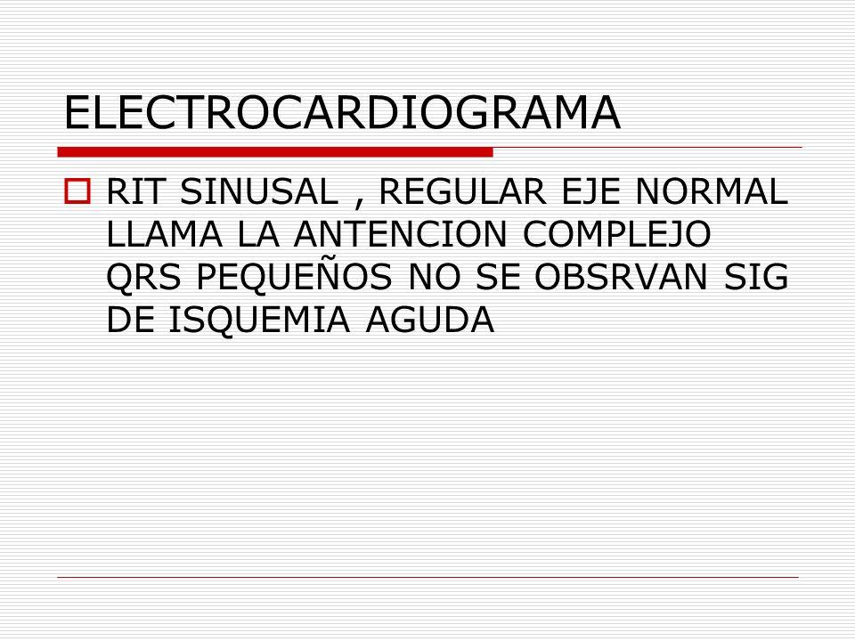 ELECTROCARDIOGRAMA RIT SINUSAL, REGULAR EJE NORMAL LLAMA LA ANTENCION COMPLEJO QRS PEQUEÑOS NO SE OBSRVAN SIG DE ISQUEMIA AGUDA
