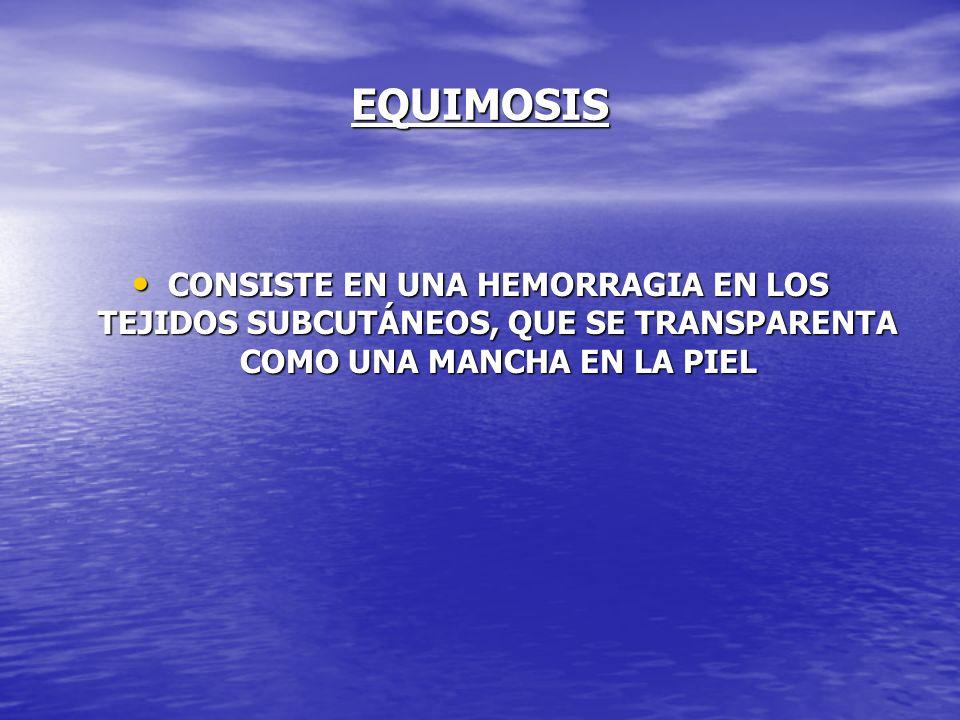 EQUIMOSIS CONSISTE EN UNA HEMORRAGIA EN LOS TEJIDOS SUBCUTÁNEOS, QUE SE TRANSPARENTA COMO UNA MANCHA EN LA PIEL CONSISTE EN UNA HEMORRAGIA EN LOS TEJI