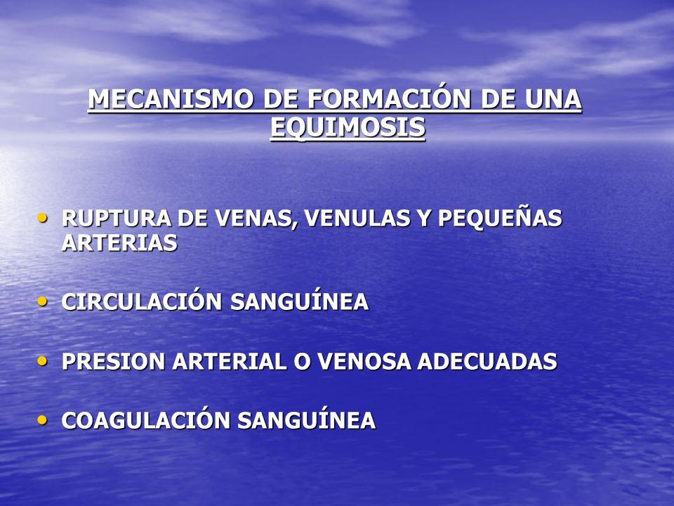 MECANISMO DE FORMACIÓN DE UNA EQUIMOSIS RUPTURA DE VENAS, VENULAS Y PEQUEÑAS ARTERIAS RUPTURA DE VENAS, VENULAS Y PEQUEÑAS ARTERIAS CIRCULACIÓN SANGUÍ