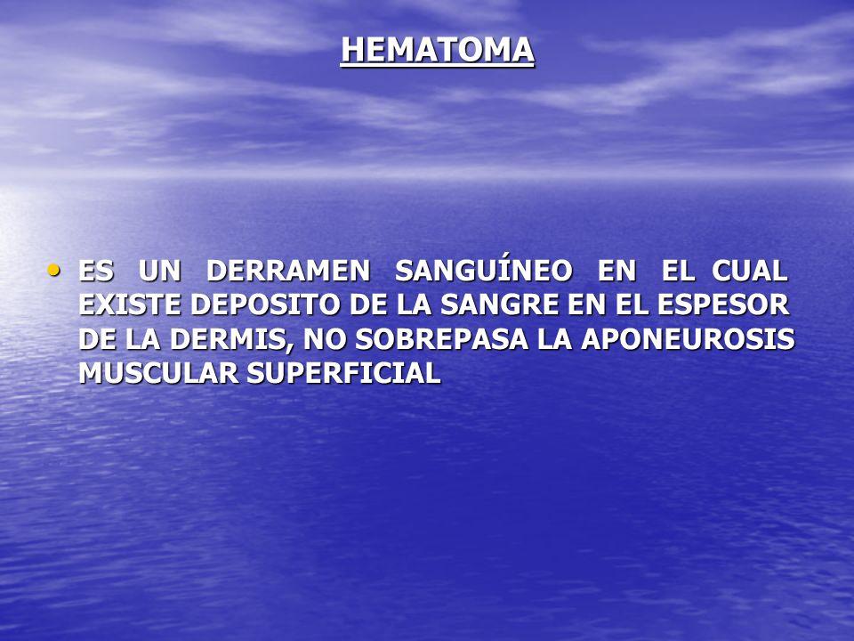 HEMATOMA ES UN DERRAMEN SANGUÍNEO EN EL CUAL EXISTE DEPOSITO DE LA SANGRE EN EL ESPESOR DE LA DERMIS, NO SOBREPASA LA APONEUROSIS MUSCULAR SUPERFICIAL