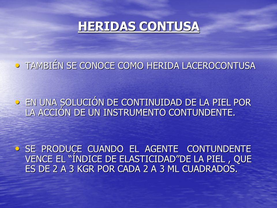 HERIDAS CONTUSA TAMBIÉN SE CONOCE COMO HERIDA LACEROCONTUSA TAMBIÉN SE CONOCE COMO HERIDA LACEROCONTUSA EN UNA SOLUCIÓN DE CONTINUIDAD DE LA PIEL POR