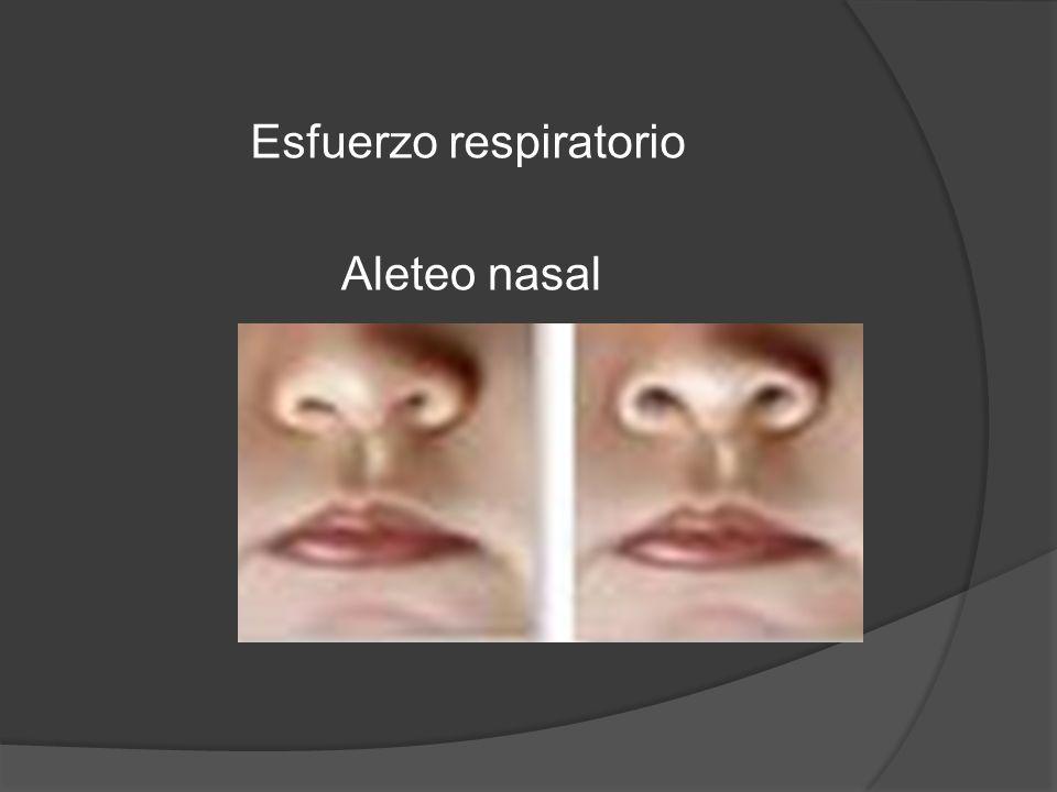Aleteo nasal Esfuerzo respiratorio