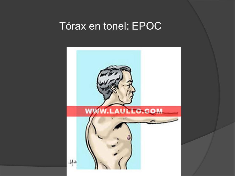 Tórax en tonel: EPOC