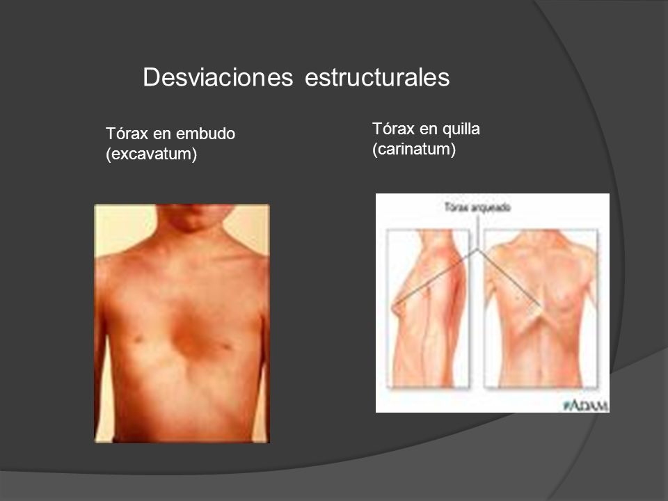 Tórax en embudo (excavatum) Tórax en quilla (carinatum) Desviaciones estructurales