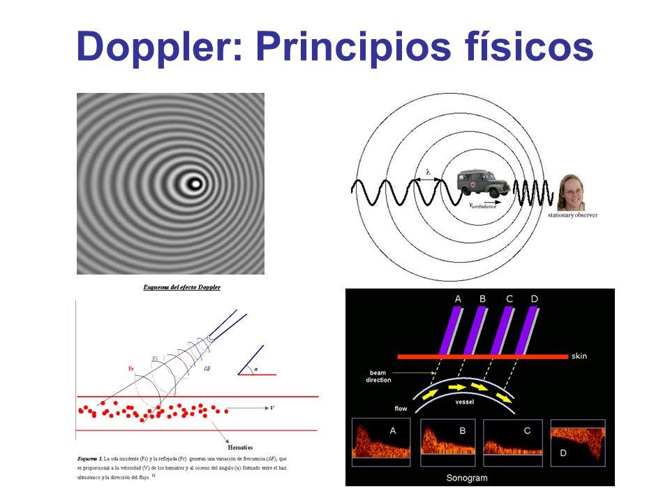 Doppler: Principios físicos