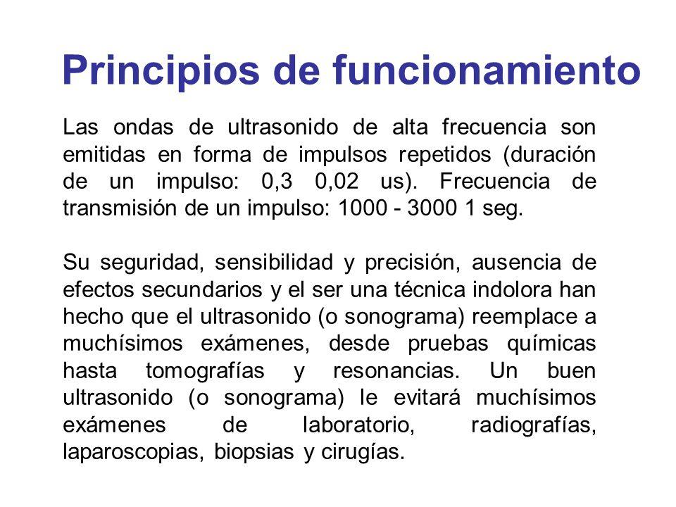 Las ondas de ultrasonido de alta frecuencia son emitidas en forma de impulsos repetidos (duración de un impulso: 0,3 0,02 us). Frecuencia de transmisi