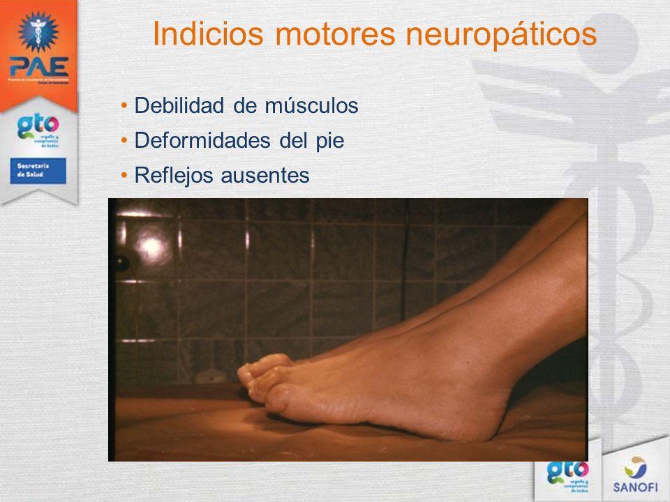 Indicios motores neuropáticos Debilidad de músculos Deformidades del pie Reflejos ausentes