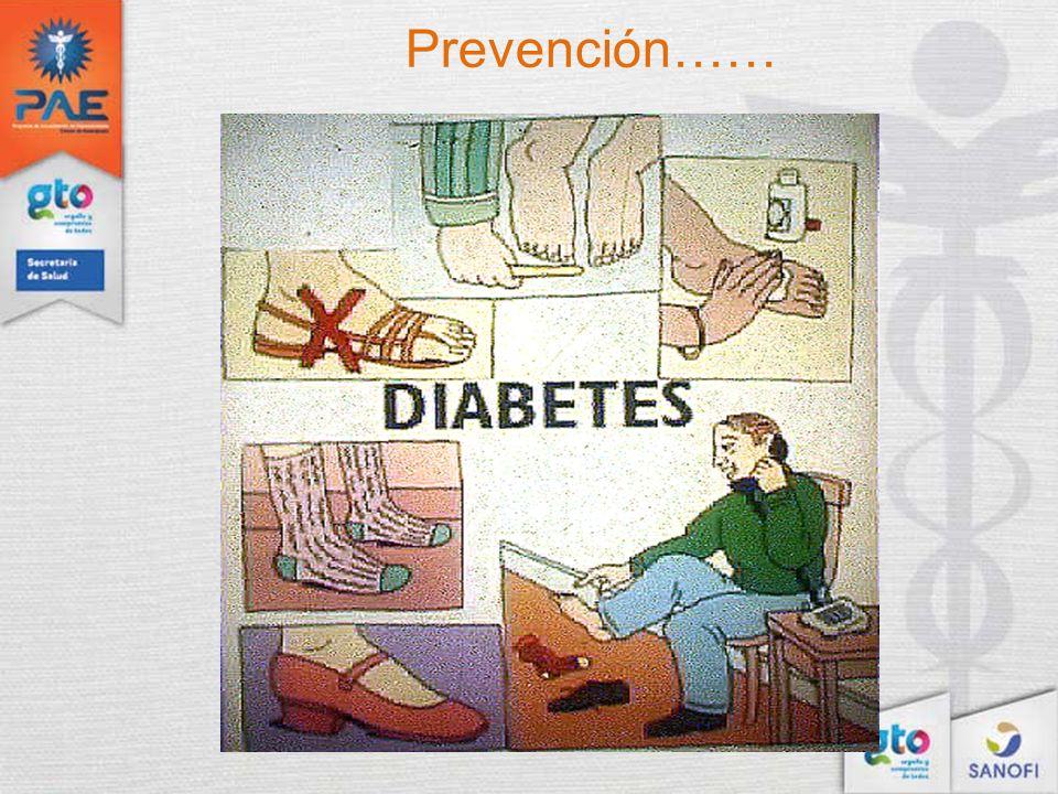 Prevención……