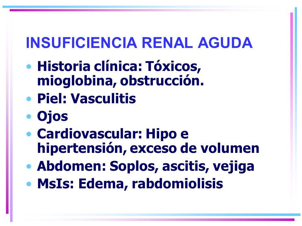 INSUFICIENCIA RENAL AGUDA Historia clínica: Tóxicos, mioglobina, obstrucción.