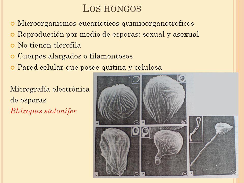 L OS HONGOS Microorganismos eucarioticos quimioorganotroficos Reproducción por medio de esporas: sexual y asexual No tienen clorofila Cuerpos alargado