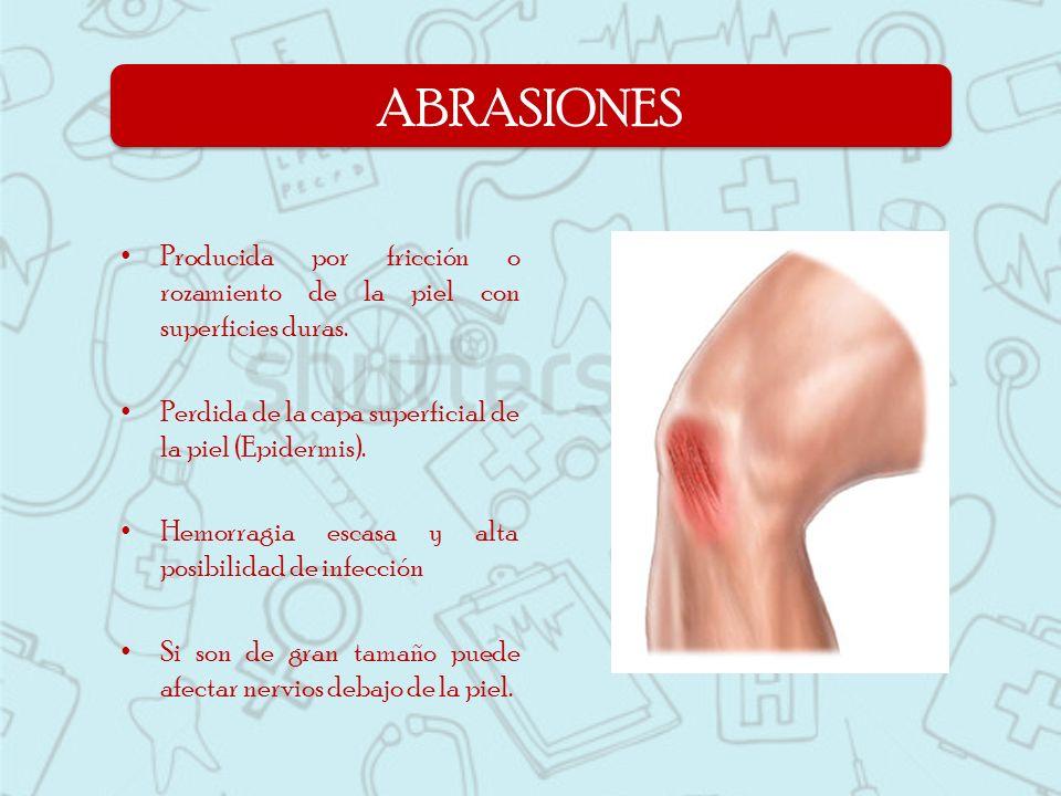 Producida por fricción o rozamiento de la piel con superficies duras. Perdida de la capa superficial de la piel (Epidermis). Hemorragia escasa y alta
