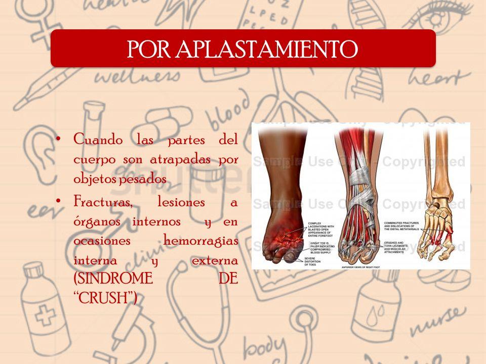 Cuando las partes del cuerpo son atrapadas por objetos pesados Fracturas, lesiones a órganos internos y en ocasiones hemorragias interna y externa (SI