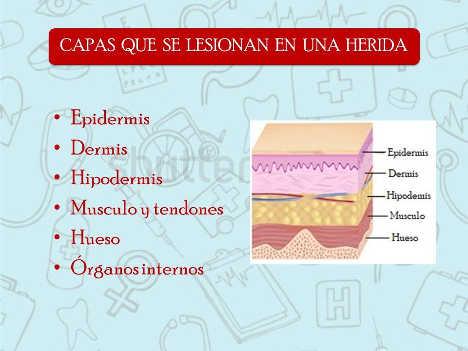 Epidermis Dermis Hipodermis Musculo y tendones Hueso Órganos internos CAPAS QUE SE LESIONAN EN UNA HERIDA