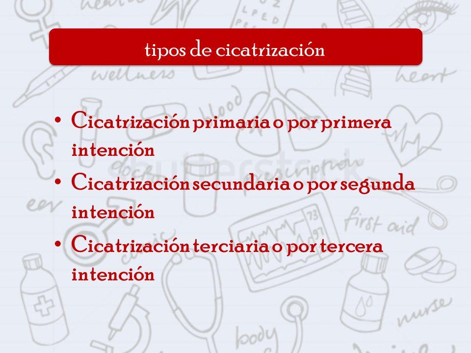 Cicatrización primaria o por primera intención Cicatrización secundaria o por segunda intención Cicatrización terciaria o por tercera intención tipos