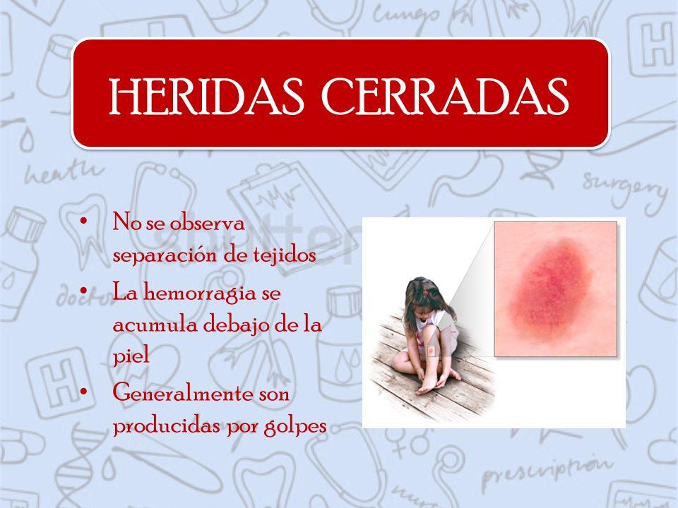 HERIDAS CERRADAS No se observa separación de tejidos La hemorragia se acumula debajo de la piel Generalmente son producidas por golpes