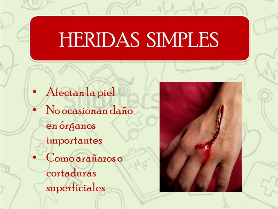 HERIDAS SIMPLES Afectan la piel No ocasionan daño en órganos importantes Como arañazos o cortaduras superficiales