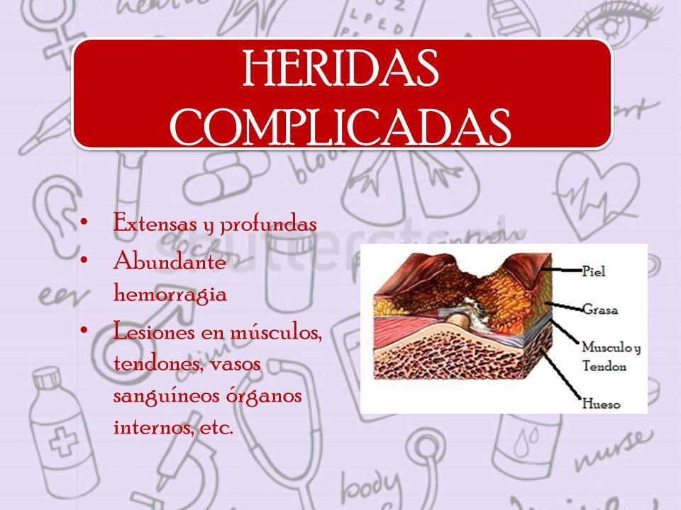 HERIDAS COMPLICADAS Extensas y profundas Abundante hemorragia Lesiones en músculos, tendones, vasos sanguíneos órganos internos, etc.