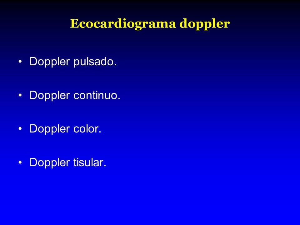 Ecocardiograma doppler Doppler pulsado. Doppler continuo. Doppler color. Doppler tisular.