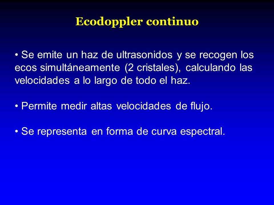 Ecodoppler continuo Se emite un haz de ultrasonidos y se recogen los ecos simultáneamente (2 cristales), calculando las velocidades a lo largo de todo