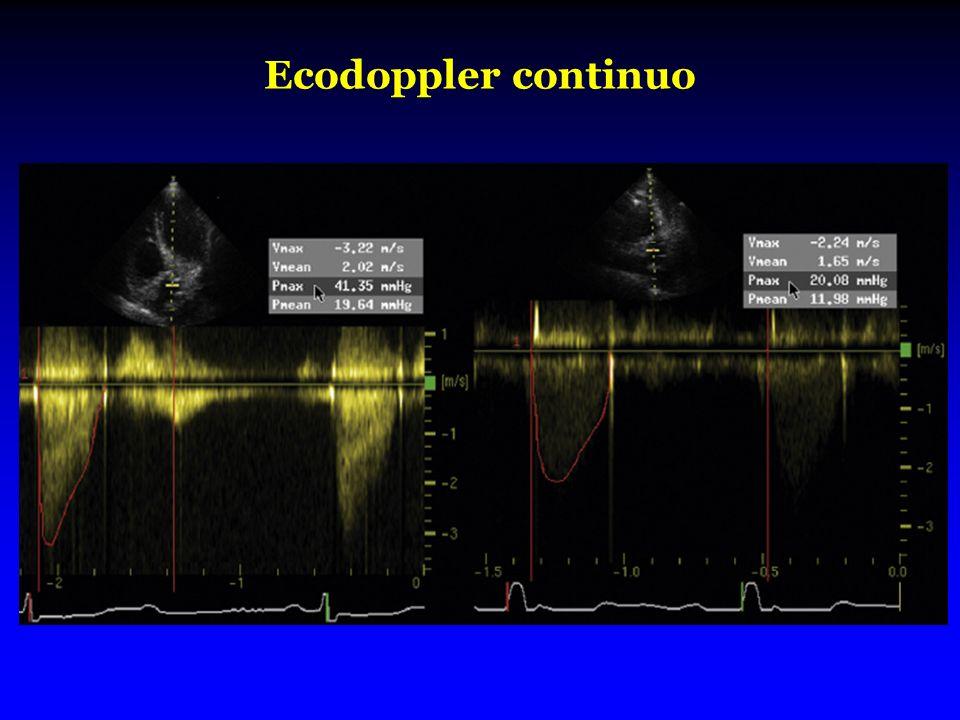Ecodoppler continuo