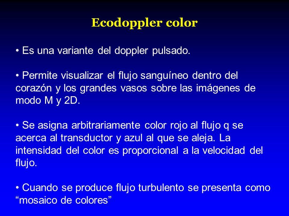 Ecodoppler color Es una variante del doppler pulsado. Permite visualizar el flujo sanguíneo dentro del corazón y los grandes vasos sobre las imágenes